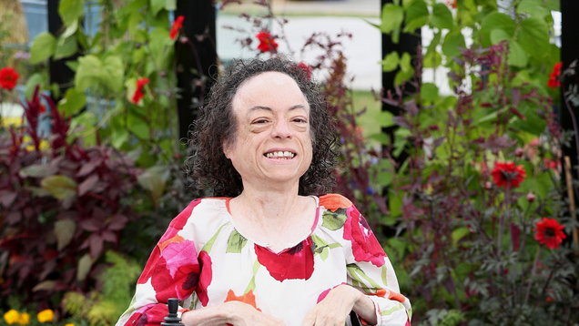 Silent Witness star Liz Carr stabbed in head by man wielding scissors