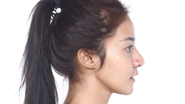 Asian Woman before make up. no retouch, fresh face with acne