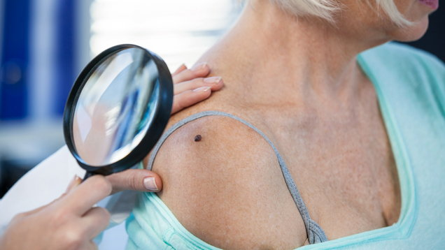 Dermatologist examining mole of female patient with magnifying glass