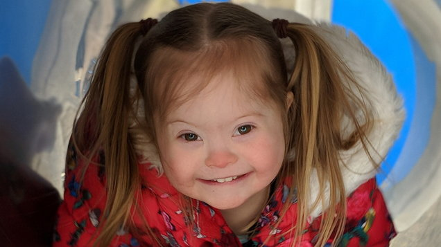 PA Real Life-Melissa Lockwood-Model with Down's Syndrome