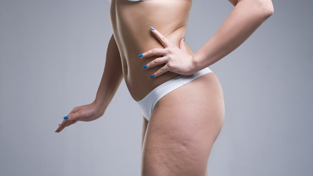 6 Cellulite Treatments You Can Do At Home That Actually Work