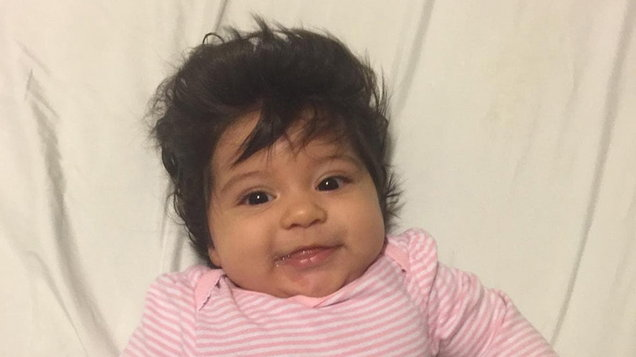 Mum reveals how her baby girl was born with so much hair she looked like a mini Elvis