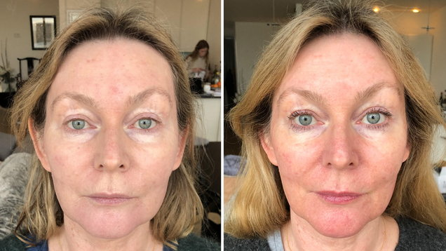 Video: This is what happens during a 'vampire facial' - the anti-ageing treatment loved by celebs