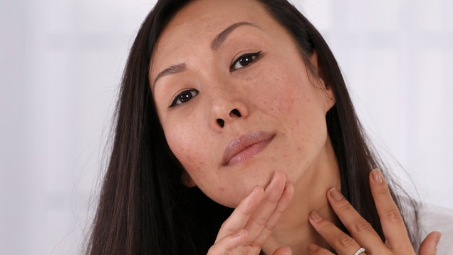 Skin Problems : Asian woman covering pimple scars and acne with powder foundation